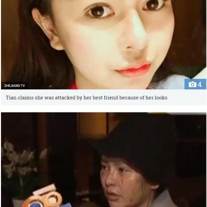 【海外発!Breaking News】「キレイになりすぎよ」整形美女の友達を嫉んだ女 顔を切りつける(中国)