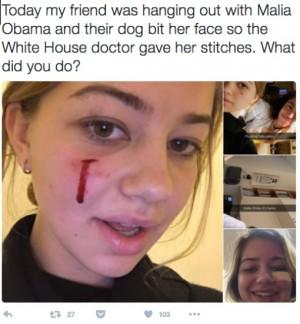 【イタすぎるセレブ達・番外編】オバマ家愛犬に噛まれた長女の友人、「顔から流血」写真がTwitterで拡散!