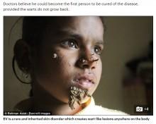 顔から木の根が生えたよう 「ツリーマン病」に悩まされる10歳の少女(バングラデシュ)