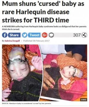 【海外発!Breaking News】奇病・ハーレクイン型魚鱗癬の赤ちゃん誕生も人々は「ヒンドゥーの神の化身」(印)