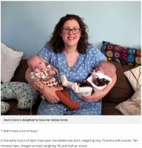 """【海外発!Breaking News】400グラム台で産まれた""""ミラクルベビー""""の双子 もうすぐ10か月に(スコットランド)"""