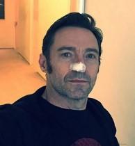 【イタすぎるセレブ達・番外編】ヒュー・ジャックマンが皮膚がん再発 治療後の姿を公開