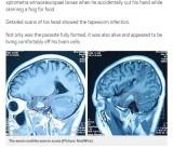 【海外発!Breaking News】脳から11cmの寄生虫を摘出 19歳男性、激しい頭痛で判明(中国)