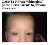 【海外発!Breaking News】写真に写る「白く光る目」を見たら病気を疑って!(英)