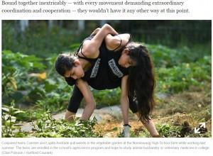 【海外発!Breaking News】16歳の結合双生児、分離手術望まず「私たちは今のままがいい」(米)