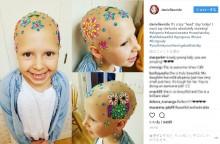 【海外発!Breaking News】脱毛症の7歳少女、素敵な方法で「クレイジーヘア・デー」に参加(米)