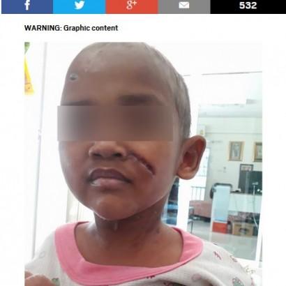 【海外発!Breaking News】継父から酷い虐待を受けていた3歳児、SNSのおかげで救出される(タイ)