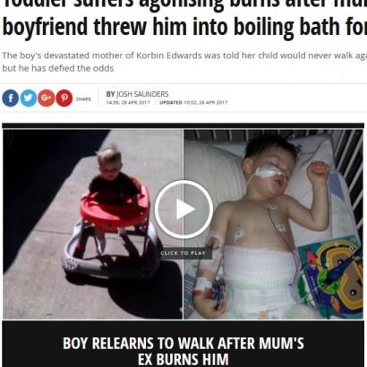 【海外発!Breaking News】「ズボンを汚したから」と熱湯の浴槽へ 3度熱傷から奇跡の回復を見せた男児(米)