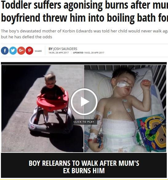 母親の交際相手に虐待された男児(出典:http://www.mirror.co.uk)