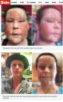 【海外発!Breaking News】パッチテスト無しのヘアカラー使用はこんなに恐ろしい! 顔面頭皮が膿疱だらけになった女性(英)<閲覧注意>