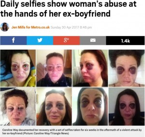 「DV被害に遭っている人たちのために」とあえて写真を公開したキャロラインさん(出典:http://metro.co.uk)