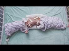 頭部が結合して生まれた双子、生後10か月目で分離手術を受ける(米)