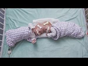 【海外発!Breaking News】頭部が結合して生まれた双子、生後10か月目で分離手術を受ける(米)