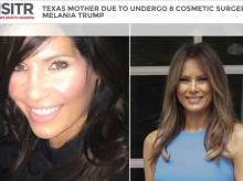 """【海外発!Breaking News】「メラニア・トランプの""""強い""""顔に憧れて」 8か所の美容整形に挑む米42歳女性"""