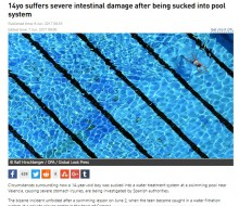 【海外発!Breaking News】プールの水循環ろ過装置に近づいた14歳少年、吸水パワーに引っ張られ腸が飛び出す(スペイン)