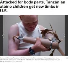 【海外発!Breaking News】呪術により腕を切断されたアフリカン・アルビノの子供たち、米国で新たな義手を装着