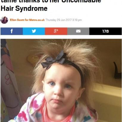 【海外発!Breaking News】硬く逆立つ髪 「櫛でとかせない頭髪症候群」の女児(米)