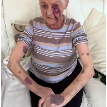 【海外発!Breaking News】80歳女性の誕生日が悪夢に 「うるさい!」と隣人から暴力、病院へ搬送される(英)