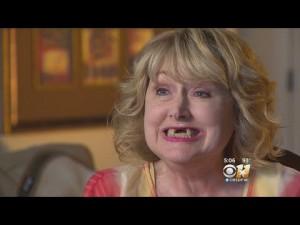 【海外発!Breaking News】膀胱手術を受けた後、目覚めると前歯が3本無くなっていた女性(米)