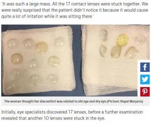 【海外発!Breaking News】眼球から27枚のコンタクトレンズが取り出された女性「不快感は歳のせいだと…」(英)