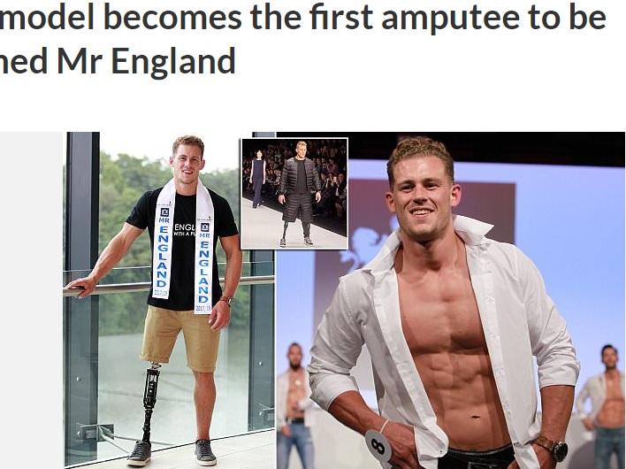 片脚の男性モデル「ミスター・イングランド」に決定(画像は『cetusnews 2017年7月17日付「Male model becomes the first amputee to be crowned Mr England」』のスクリーンショット)