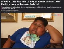【海外発!Breaking News】食べることが止まらない難病と闘う体重90kgの10歳少年、トイレットペーパーを食べたことも(南ア)