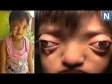 【海外発!Breaking News】カエルと呼ばれ奇病に侵された少女、寄付金により手術を受ける(印)