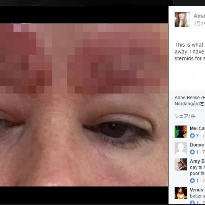 【海外発!Breaking News】眉タトゥーをした女性、眉の皮膚が剥離し爛れる事態に(豪)