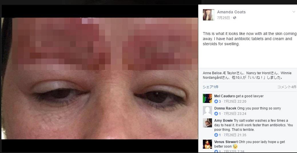 眉タトゥーをした翌日、痛々しい姿に(画像は『Amanda Coats 2017年7月25日付Facebook』のスクリーンショット 画像を一部加工しています)