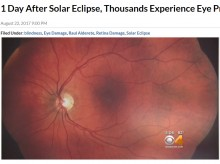 【海外発!Breaking News】皆既日食に沸いたアメリカ、数千人が目の異常で眼科を受診か