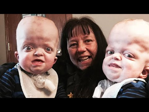 遺伝子異常がある双子を養子にした元看護師(画像は『Inside Edition 2017年8月11日公開 YouTube「Grandma Adopts Twins With Rare Genetic Disease, Says She's 'Privileged'』のサムネイル)