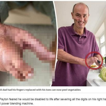 【海外発!Breaking News】事故で右手指全てを失った男性、足指の移植で「字も書けるように」(英)