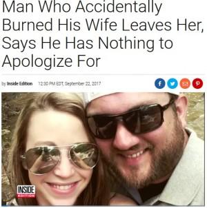 【海外発!Breaking News】夫の不注意で火傷を負わされ捨てられた妻「夫からの謝罪は今もない」(米)