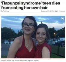 【海外発!Breaking News】恐ろしい食毛癖 腹膜炎で急死した16歳少女の胃からボール状の毛髪(英)