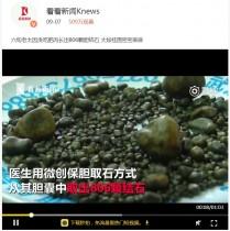 【海外発!Breaking News】脂っこいお肉が大好きな高齢女性 胆石800個を摘出(中国)