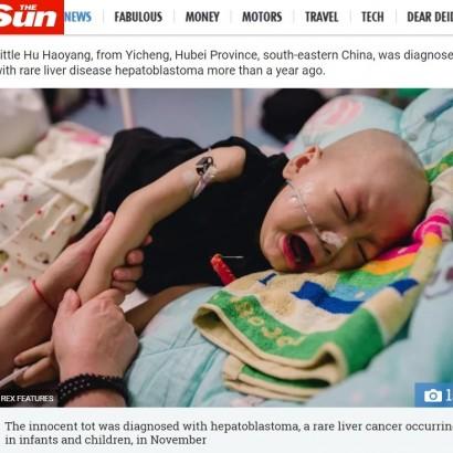 【海外発!Breaking News】悪性腫瘍と闘う2歳の我が子を捨てた母親、治療費を持ち逃げ(中国)