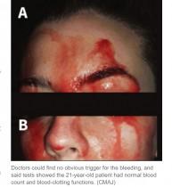 【海外発!Breaking News】血の汗を流す女性に「最も珍しい症例」と医師困惑(伊)