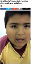 【海外発!Breaking News】笛を誤飲した男児 医師が術前の動画を公開(アルゼンチン)<動画あり>