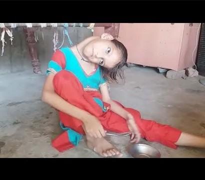 【海外発!Breaking News】首が90度曲がったままの9歳少女 学校にも行けず(パキスタン)<動画あり>