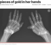 【海外発!Breaking News】鍼治療で両手に無数の金の針が埋め込まれていた女性(韓国)