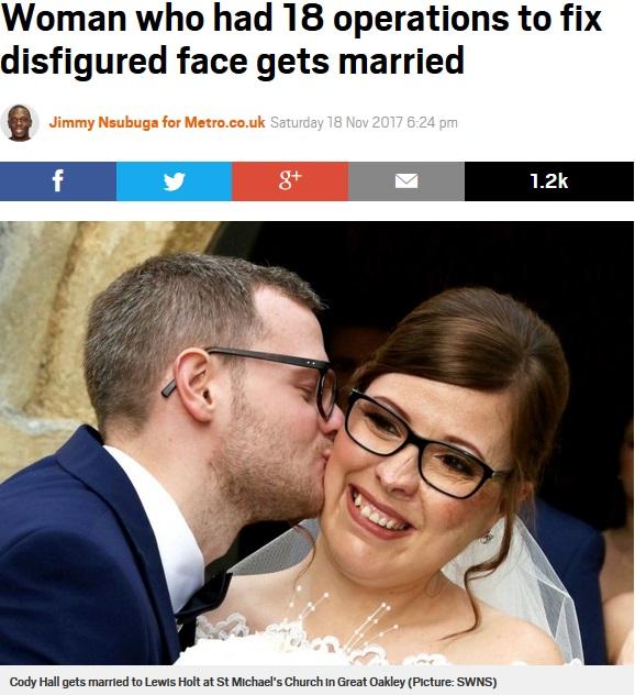 顔面奇形で生まれ多くの手術を経験した女性、最愛の彼とゴールイン(画像は『Metro 2017年11月18日付「Woman who had 18 operations to fix disfigured face gets married」(Picture: SWNS)』のスクリーンショット)