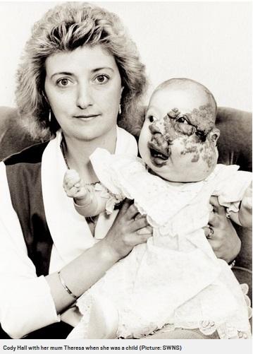 赤ちゃんの頃のコーディーさん(画像は『Metro 2017年11月18日付「Woman who had 18 operations to fix disfigured face gets married」(Picture: SWNS)』のスクリーンショット)