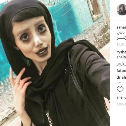 【海外発!Breaking News】アンジェリーナ・ジョリーに憧れ50もの整形を繰り返した19歳女性(イラン)