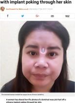 【海外発!Breaking News】格安美容整形で鼻に入れたシリコンが飛び出てしまった女性(タイ)