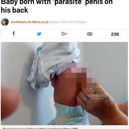 【海外発!Breaking News】背中に陰茎を持つ乳児、除去手術が無事成功(アゼルバイジャン)