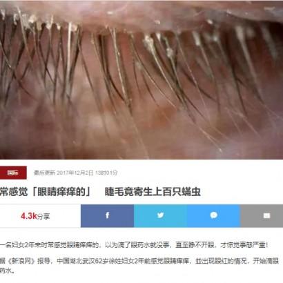 【海外発!Breaking News】不潔な枕カバー5年使用 開かない瞼の原因は100匹超のまつ毛ダニ(中国)