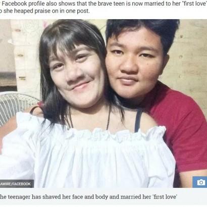【海外発!Breaking News】世界で最も毛深い少女、17歳になり結婚して幸せに(タイ)