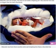 【海外発!Breaking News】396グラムで誕生した赤ちゃん、元気に育つ(印)
