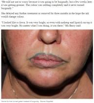 【海外発!Breaking News】ずさんな豊唇タトゥーで輪郭にグリーンの線 豪女性、海外での施術を後悔