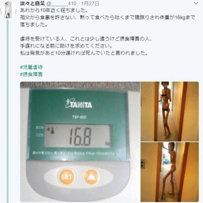 【海外発!Breaking News】家族から食事を許されず餓死寸前だった日本人女性に海外から怒りと驚きの声「こんな目に遭わせる理由はいったい何なんだ」